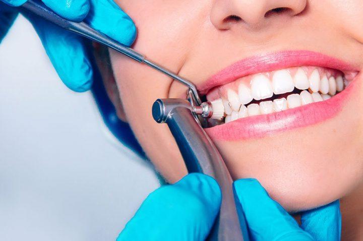 Preventive dentistry saanich